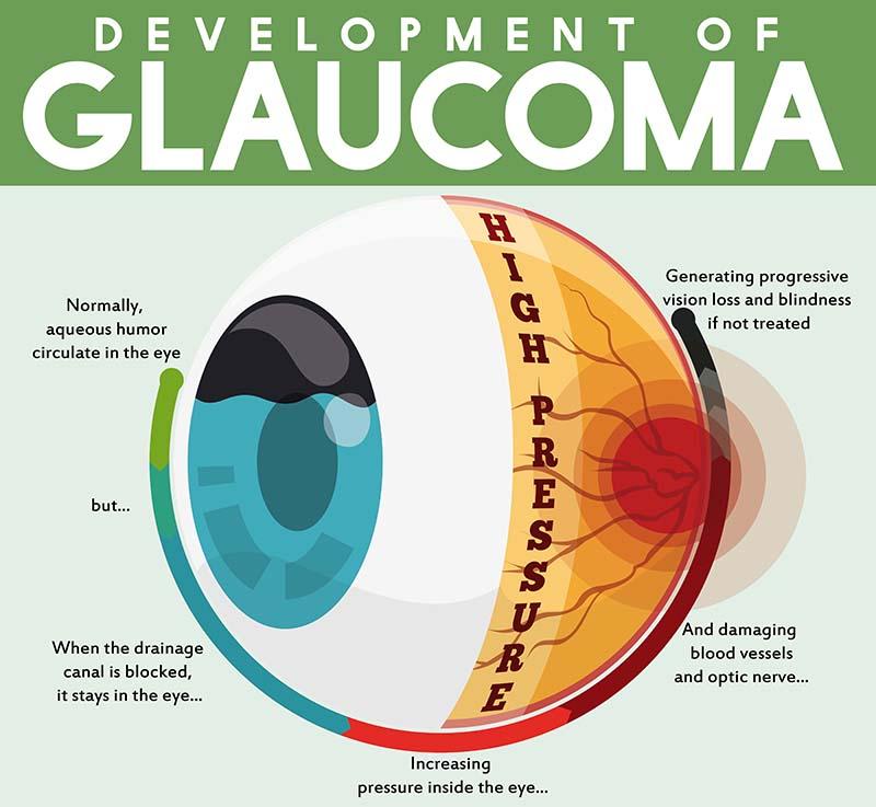 Primary Closed Angle Glaucoma (PCAG)
