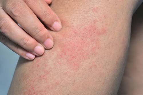 Rash due to dog bite bacteria Capnocytophaga