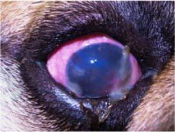 Intermediate dry eye stage